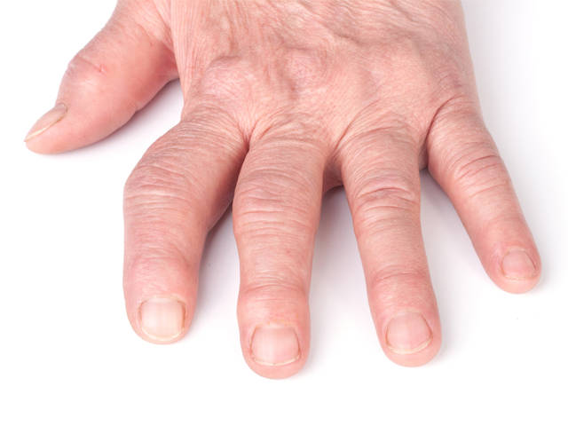 artrózis infravörös kezelés az íves ízületek artrózisának kezdeti jelei