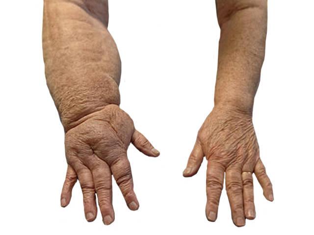 nyaki osteochondrozist kezelő készítmények ha minden ízület fáj, mit kell tenni