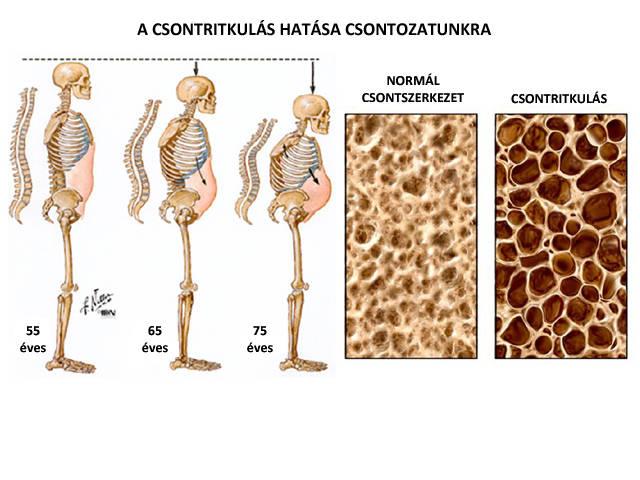 csontritkulás és gerinc artrózis kezelése